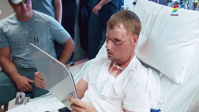 Află cum datorită protezelelor faciale se poate schimba viața oamenilor