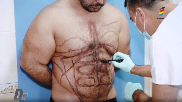 Ce este ginecomastia sau de ce le cresc sâni bărbaților