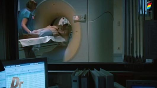 Ce este cavernomul cerebral și cum tratăm cavernomul în trunchi cerebral
