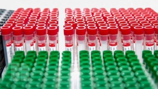 Confuzie decizională în sânul guvernării. Executivul anunță reducerea prețului la testul PCR la stat, care, de fapt, este gratuit