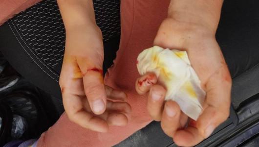 O fetiță de cinci ani s-a ales cu mai multe răni după ce a fost mușcată de câinele vecinilor